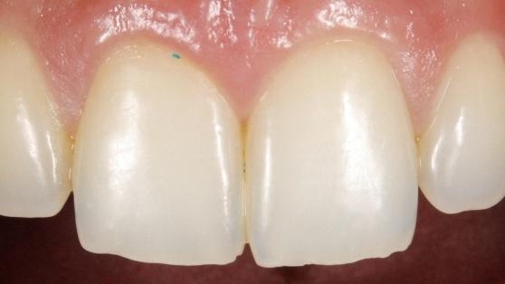 Microbead Toothpaste
